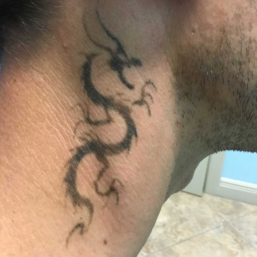 Best Tattoo Removal Boca Raton | ReversaTatt Tattoo Removal